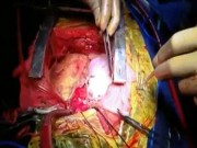 Người đàn ông có 2 quả tim cùng đập