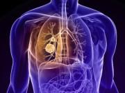Thực phẩm  ' quét sạch '  độc tố trong phổi