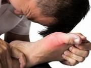 Bệnh gout là gì? Nguyên nhân và cách chữa nhanh nhất