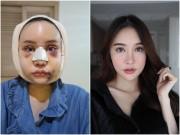 """Cô gái Thái  """" đập mặt xây lại """"  chịu đau đớn hàng tháng trời"""