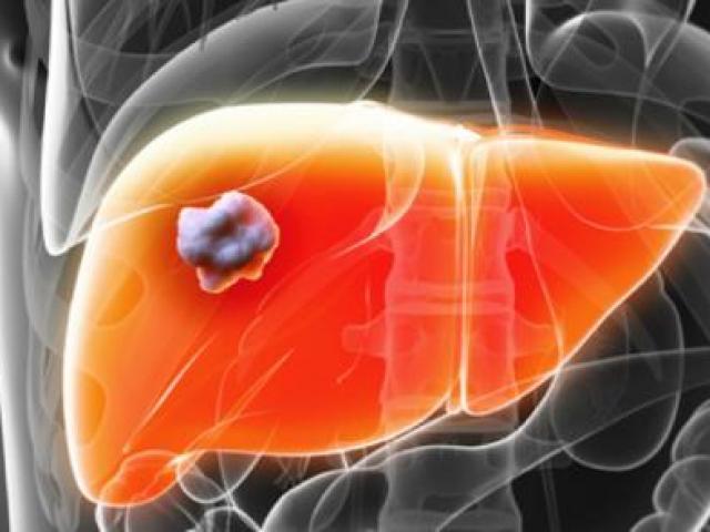 Phát hiện vi khuẩn trên da có thể bảo vệ cơ thể khỏi bệnh ung thư - 2