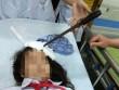 Nữ sinh bị bạn học phi dao cắm thẳng trán