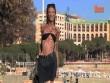 Cô gái hóa bộ xương di động vì đam mê giảm cân