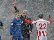 TRỰC TIẾP Stoke - Everton: Những phút căng thẳng