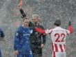 TRỰC TIẾP Stoke - Everton: Không thể cưỡng lại