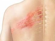 Bài thuốc chữa bệnh ngoài da từ quả sung
