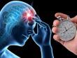 7 triệu chứng đột quỵ nghiêm trọng bạn không nên bỏ qua