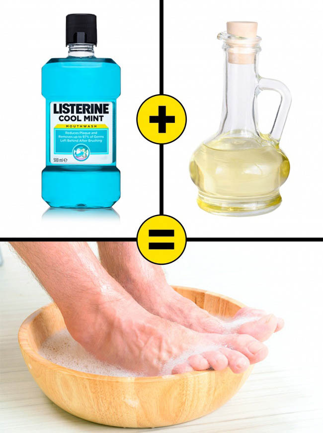 10 cách làm chữa nẻ gót chân hiệu quả ngay tại nhà - 1