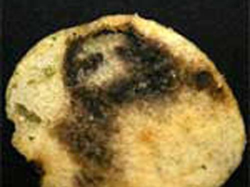 Chuyện lạ: Chúa Jesu hiện hình trong lá phổi - 4