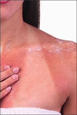 Cải thiện làn da cháy nắng - 1