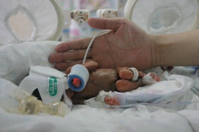"""Những em bé """"lớn, nhỏ"""" lạ  thường, Phi thường - kỳ quặc, chuyện lạ, em bé, sơ sinh, chào đời, cân  nặng"""