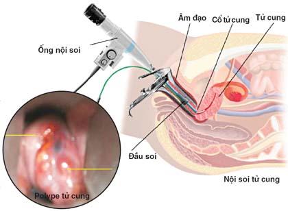 Bệnh lý lành tính niêm mạc tử cung - 1