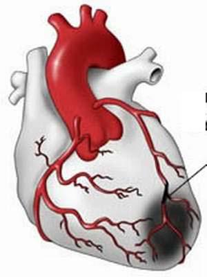Trời nắng nóng, nguy hại cho người bệnh tim mạch, chuyển hóa - 2