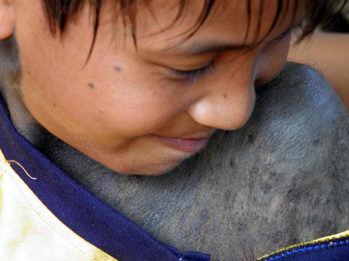 Quảng Bình: Một cháu bé mọc lông kín người - 1