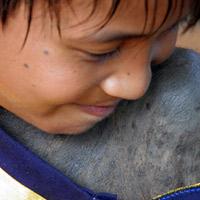 Quảng Bình: Một cháu bé mọc lông kín người