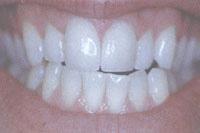 Tại sao răng sứ CERCON có giá thành cao?, Làm đẹp,