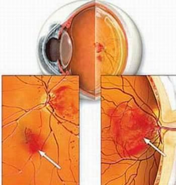 Đái tháo đường – Kẻ thù của thị giác - 1