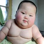 Sức khỏe đời sống - Trẻ thừa cân, béo phì dễ bị gan nhiễm mỡ