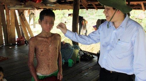 """""""Bệnh lạ"""" Quảng Ngãi: Nghi do gạo mốc - 3"""