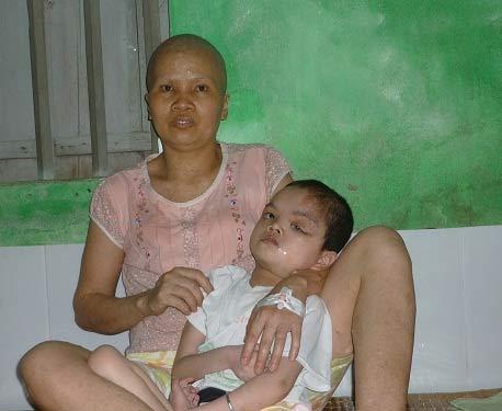 Đạp xích lô nuôi con bại não, vợ ung thư - 1