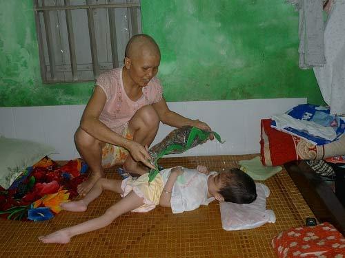 Đạp xích lô nuôi con bại não, vợ ung thư - 2