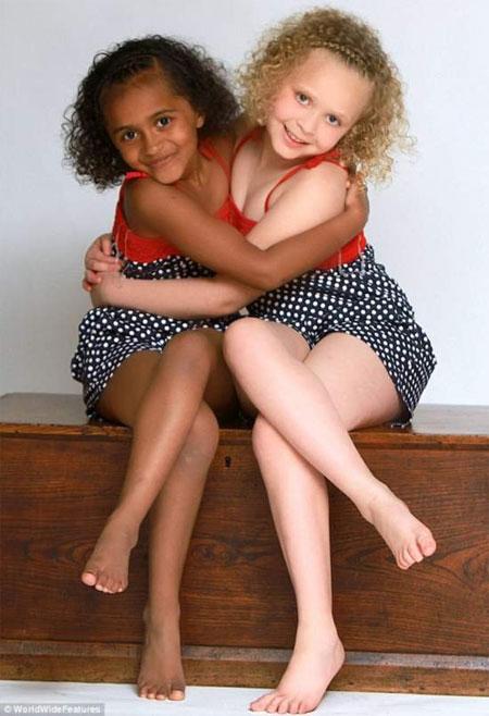 Những cặp song sinh đen trắng hiếm gặp - 5