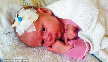 Kinh ngạc bé gái không có hệ miễn dịch - 1