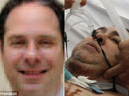 Bác sĩ đốt bệnh nhân trên bàn phẫu thuật - 3