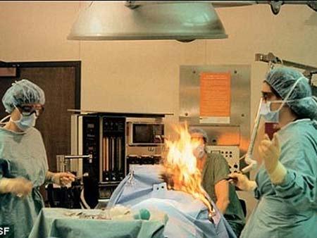 Bác sĩ đốt bệnh nhân trên bàn phẫu thuật - 1
