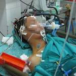 Sức khỏe đời sống - 1 người chết não cứu sống 6 người