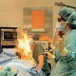Sức khỏe đời sống - Bác sĩ đốt bệnh nhân trên bàn phẫu thuật