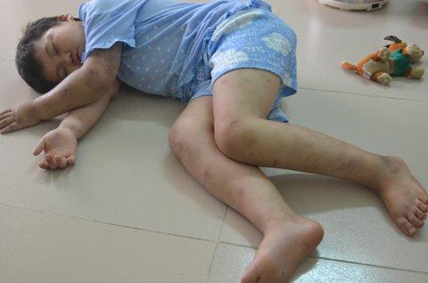 HN: Bé 10 tuổi bị cha đẻ đánh đập dã man - 1