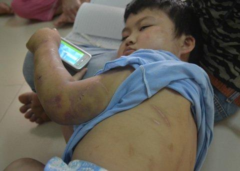 HN: Bé 10 tuổi bị cha đẻ đánh đập dã man - 3