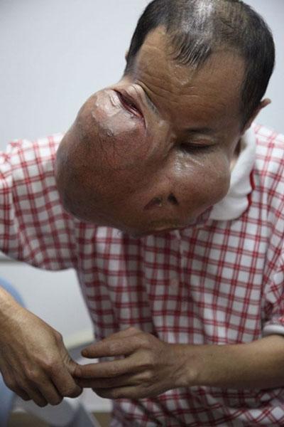 Người đàn ông có khối u... to hơn mặt - 3