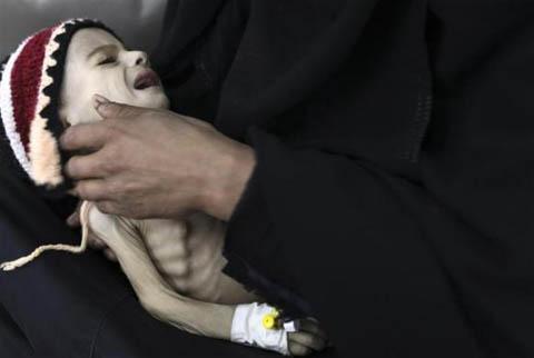 Những đứa trẻ teo tóp đáng thương ở Yemen - 1