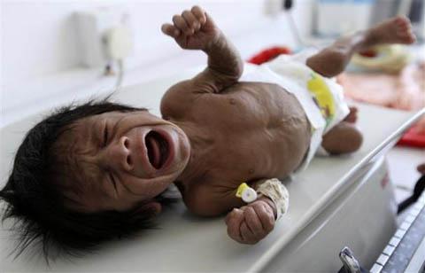Những đứa trẻ teo tóp đáng thương ở Yemen - 10