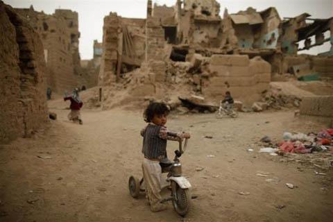 Những đứa trẻ teo tóp đáng thương ở Yemen - 11