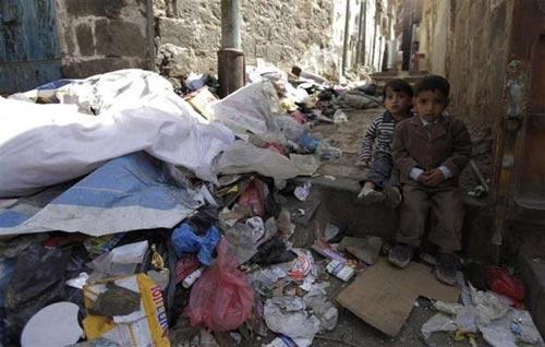 Những đứa trẻ teo tóp đáng thương ở Yemen - 13
