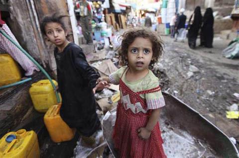 Những đứa trẻ teo tóp đáng thương ở Yemen - 2