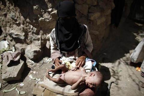 Những đứa trẻ teo tóp đáng thương ở Yemen - 3