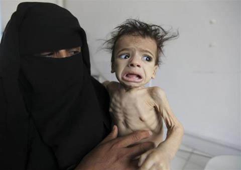 Những đứa trẻ teo tóp đáng thương ở Yemen - 4