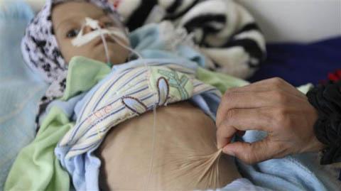 Những đứa trẻ teo tóp đáng thương ở Yemen - 5