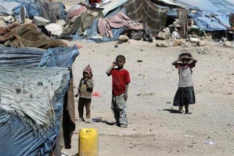 Những đứa trẻ teo tóp đáng thương ở Yemen - 6