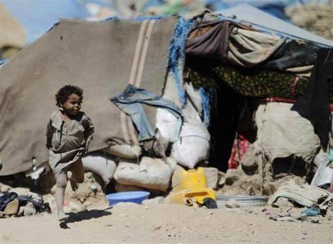 Những đứa trẻ teo tóp đáng thương ở Yemen - 7