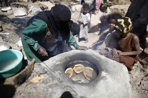 Những đứa trẻ teo tóp đáng thương ở Yemen - 8