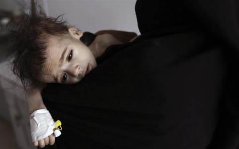 Những đứa trẻ teo tóp đáng thương ở Yemen - 9