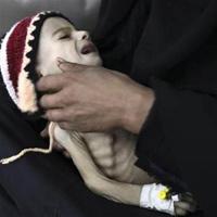 Những đứa trẻ teo tóp đáng thương ở Yemen