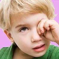 Trẻ hay dụi mắt, bệnh gì?