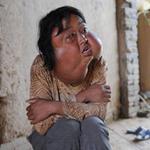 Tin tức trong ngày - TQ: Người phụ nữ mang 7 khối u trên mặt