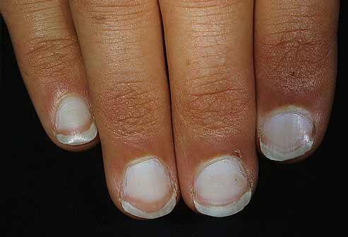 Móng tay bất thường là dấu hiệu bệnh nặng - 2